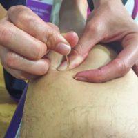 fisioterapia-clinica-dental-tornel-3